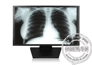 High Definition Medical LCD Monitors , SMPTE296M LCD Display